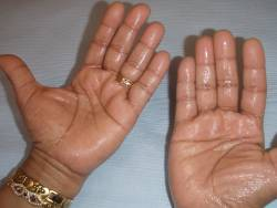 Hyperhidrosis of the hands